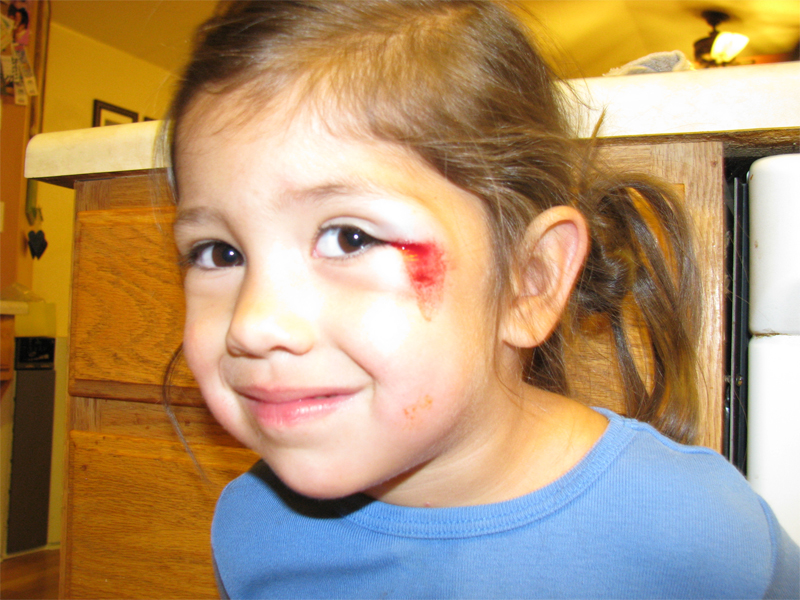 There Is A Little Cut Near Her Eye And Under That Is A Rug Burn Type Cut.